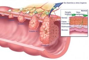 La pérdida de hormonas también influye en el desarrollo del cáncer de colon