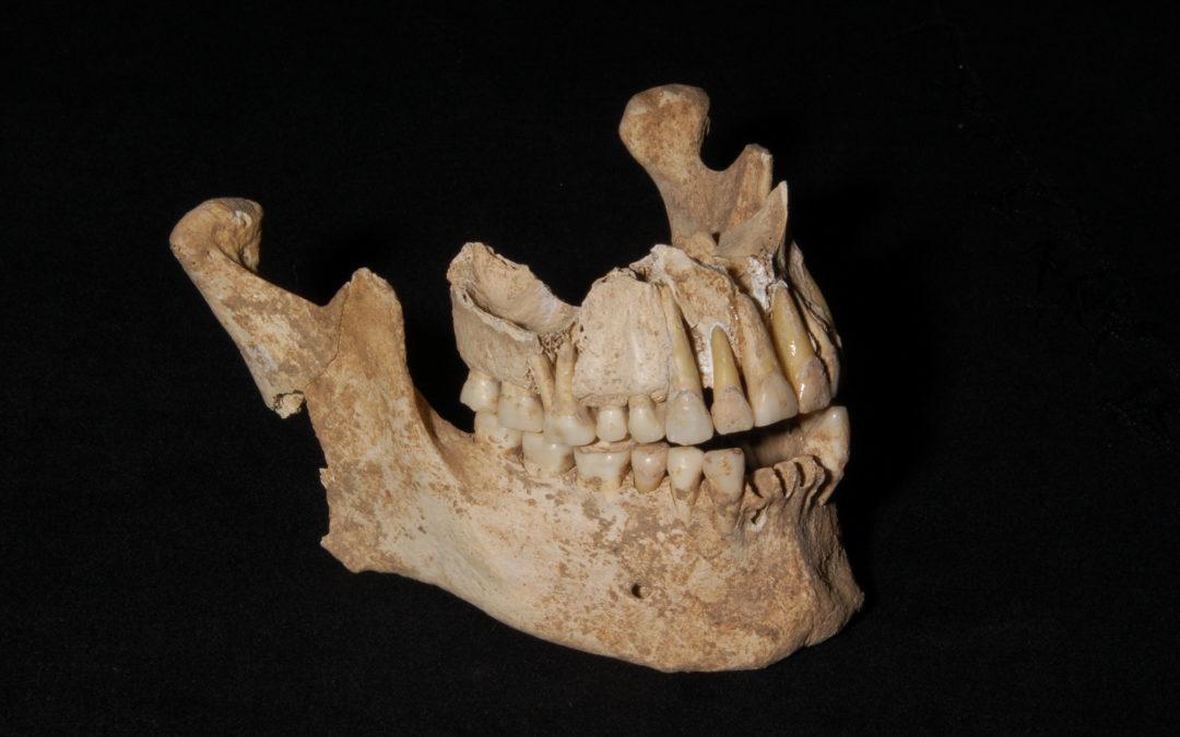 ¿Qué hace un cirujano maxilofacial?